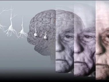 Cientistas descobrem proteína do Alzheimer