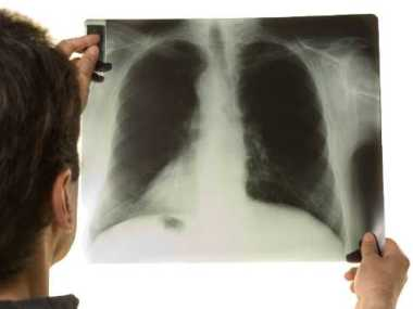 Tuberculose é a doença infecciosa que mais mata, superando a Aids