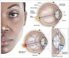 O glaucoma pode provocar a cegueira
