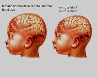 Governo decreta emergência sanitária por surto de microcefalia