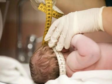 Vírus bovino é encontrado em bebês com microcefalia