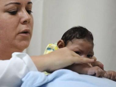 HRS amplia atendimento de pacientes com Zika e microcefalia
