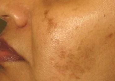 Hiperpigmentação