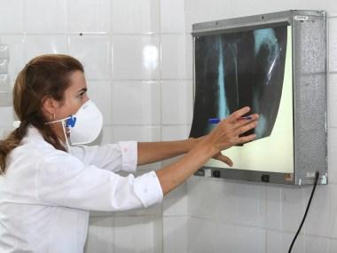 Brasil se aproxima de padrão positivo de combate à tuberculose, mostra relatório