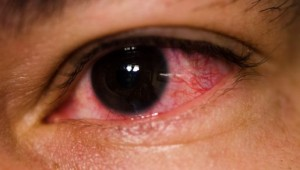 Eye-redness-and-conjuctivitis