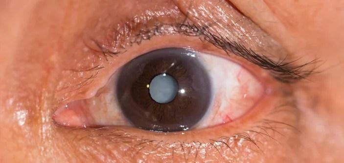 Saúde Ocular - Cuidados com as festas juninas