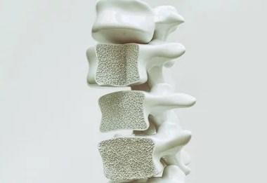 Apenas 20% das pessoas sabem que têm osteoporose