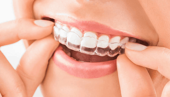 Orthodontic Treatment Clinics | free Classified | Free Advertising | free classified ads