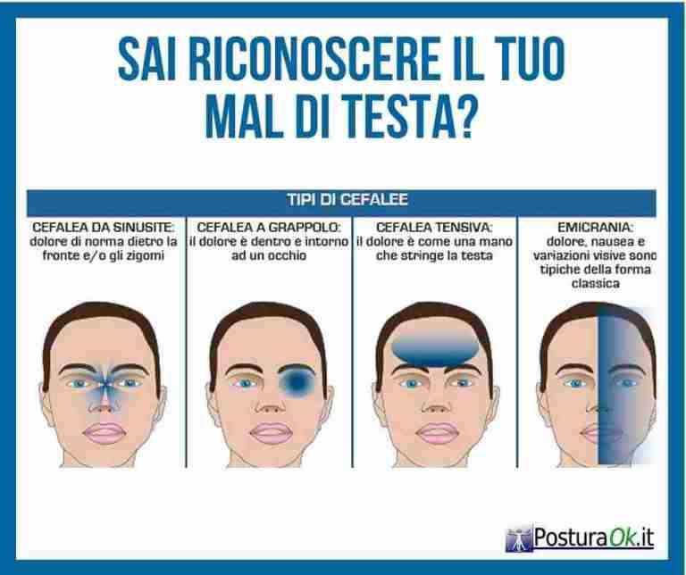 Cefalea Cause e Cura - Tipi di Emicrania - Postura OK - Dott. Massimo Pantani