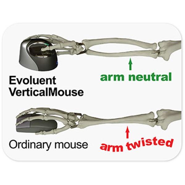 comment choisir une souris ergonomique