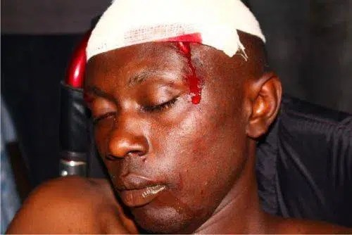 A hawker who was hurt by Kanjo askaris in the past. Image from http://www.kenya-today.com/news/graphic-photos-badly-hacked-hawkers-hit-nairobi