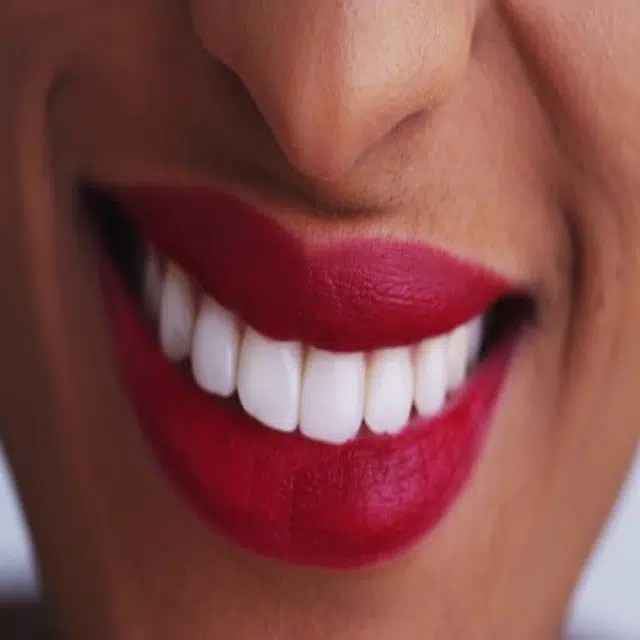 African Woman with beautiful teeth smiles. Image via: https://bit.ly/2FnXi4J
