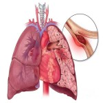 Pulmonary Embolism: Causes, Symptoms And Risk Factors
