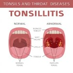 Health: All You Need To Know About Tonsillitis