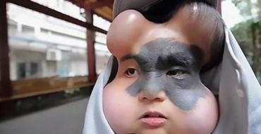 Des médecins lui ont implanté quatre ballons dans la tête pour lui sauver la vie