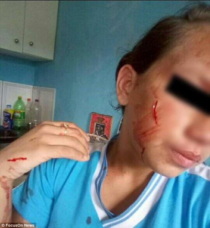 En pleine bagarre, elle poignarde sa camarade sous les encouragements de sa mère