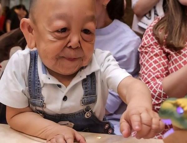 Kazakhstan : Âgé de 6 ans, ce petit garçon ressemble déjà à un vieillard
