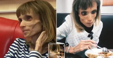 Anorexie : Elle est si maigre que son médecin lui demande si elle veut jouer dans un film d'horreur