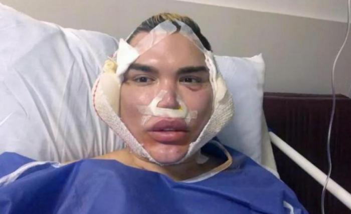 Le Ken humain totalement défiguré par sa dernière opération : Les images choc dévoilées