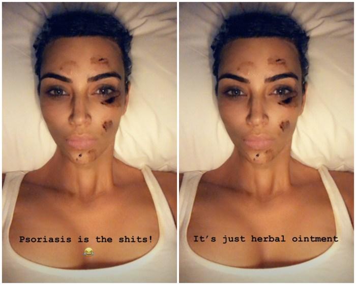 Kim Kardashia : son remède surprenant contre le psoriasis