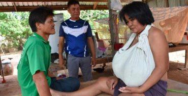La poitrine de cette femme grossit à vue d'œil depuis 9 mois
