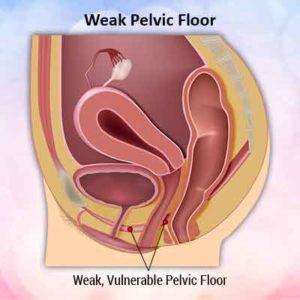 weak pelvic floor min 1 300x300