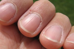 Cutting your nails – from beliefs to health