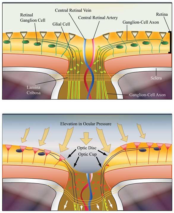 Optic Nerve Lamina Cribrosa