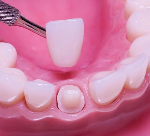 Kako da krunice na zubima traju duže