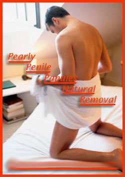 pearly penile papules natural removal