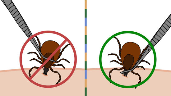 3 Steps To Removing Ticks Safely Putting The Pieces Together