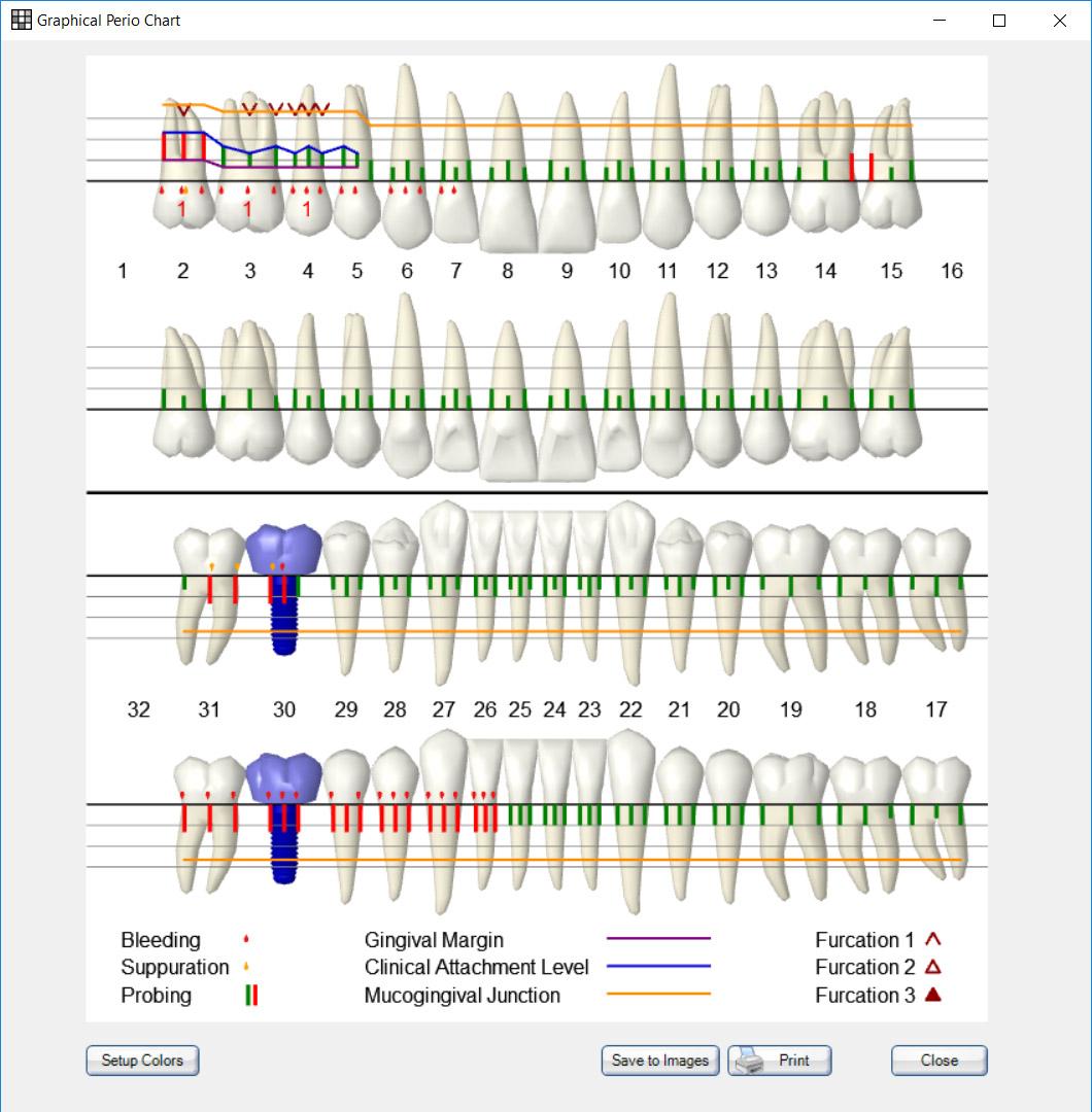 Basic Dental Charting Worksheet