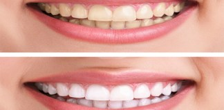 teeth whitening tips in telugu