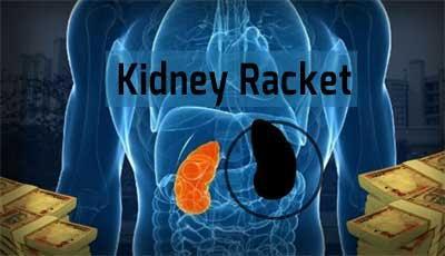 kidney-racket-2