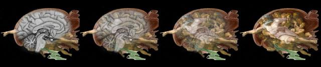 Sixtinische Kapelle Die Geheimbotschaften von Michelangelo