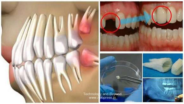 Zähne wachsen in 9 Wochen nach und machen Zahnprothesen