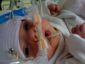 Isolation, From Your Preemie's Point of View