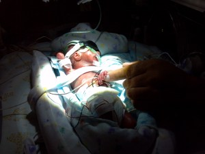 micro preemie baby in NICU