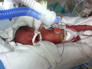 early intervention special education NICU prematurity preemie