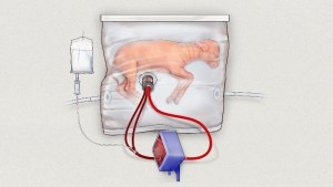 Could This Artificial Womb Revolutionize Micro Preemie Care?