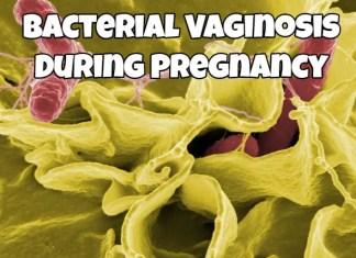 Bacterial Vaginosis During Pregnancy