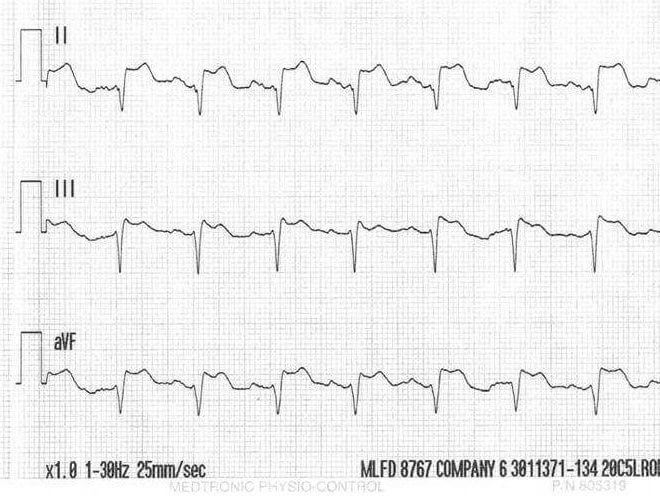 Can you diagnose STEMI on a rhythm strip?