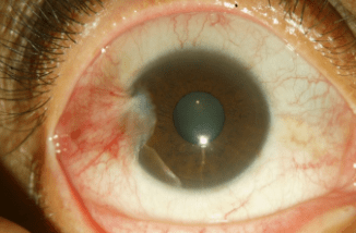 A 2–3 mm temporal pterygium without involvement of the papillary.