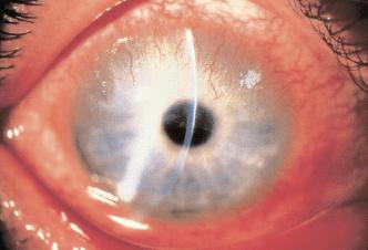Pannus Episcleritis, sclerokeratitis