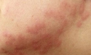 Bedbug bites 1024x616 1