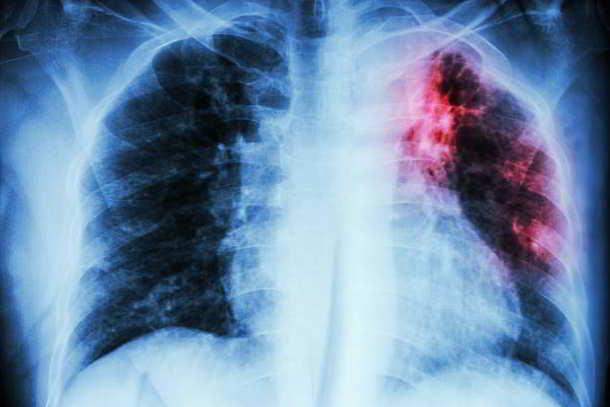 Tuberkulose,Corona,Presse,News,Medien,Aktuelle