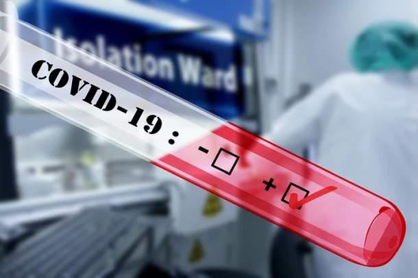Positiv ,PCR Test,Presse,News,Medien,Aktuelle