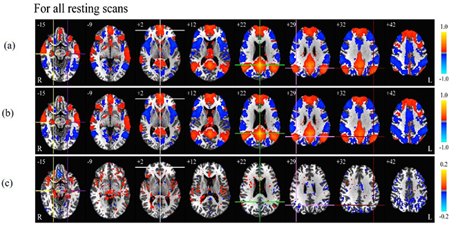 EEG-assisted retrospective motion correction for fMRI (E-REMCOR) and automated implementation (aE-REMCOR) - Fig. 3:  Resting state connectivity of the default mode network (DMN). (a) – (b): Group correlation map without and with aE-REMCOR for all 86 resting scans. (c): Group correlation difference for all the resting scans ((b) – (a)). The centers of the ROI in PCC (0, -52, 22), mPFC (0, 49, 2), LatPar-L (-45, -60, 32), LatPar-R (43, -60, 29), HF-L (-22, -19, -15) and HF-R (22, -19, -15) of the DMN are respectively marked with green, white, maroon, pink, purple and yellow crosshairs. Indicated next to each slice image is the z-coordinate of the slice. For the group analysis in Figs. (d) – (i), uncorrected p < 0.001 is used. Reproduced from Wang et al. (2016) NeuroImage [2].