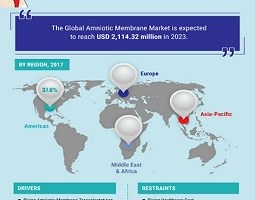 Amniotic Membrane Market Will See a Huge Impact on Growth, Share and Size with 12.16% CAGR Forecast & Foreseen by 2023 3