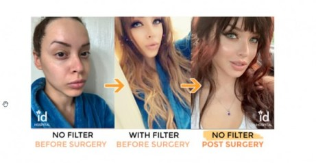 Snapchat Dysmorphia Plastic Surgery: What is it? 5